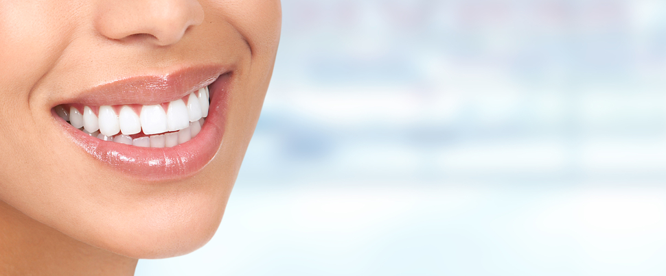 Top 10 At Home Teeth Whitening Kits For Sale